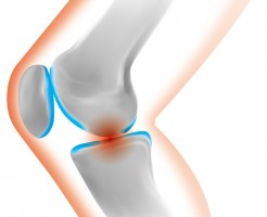 膝が変な感じって人。あなたはこの病気かもしれません。